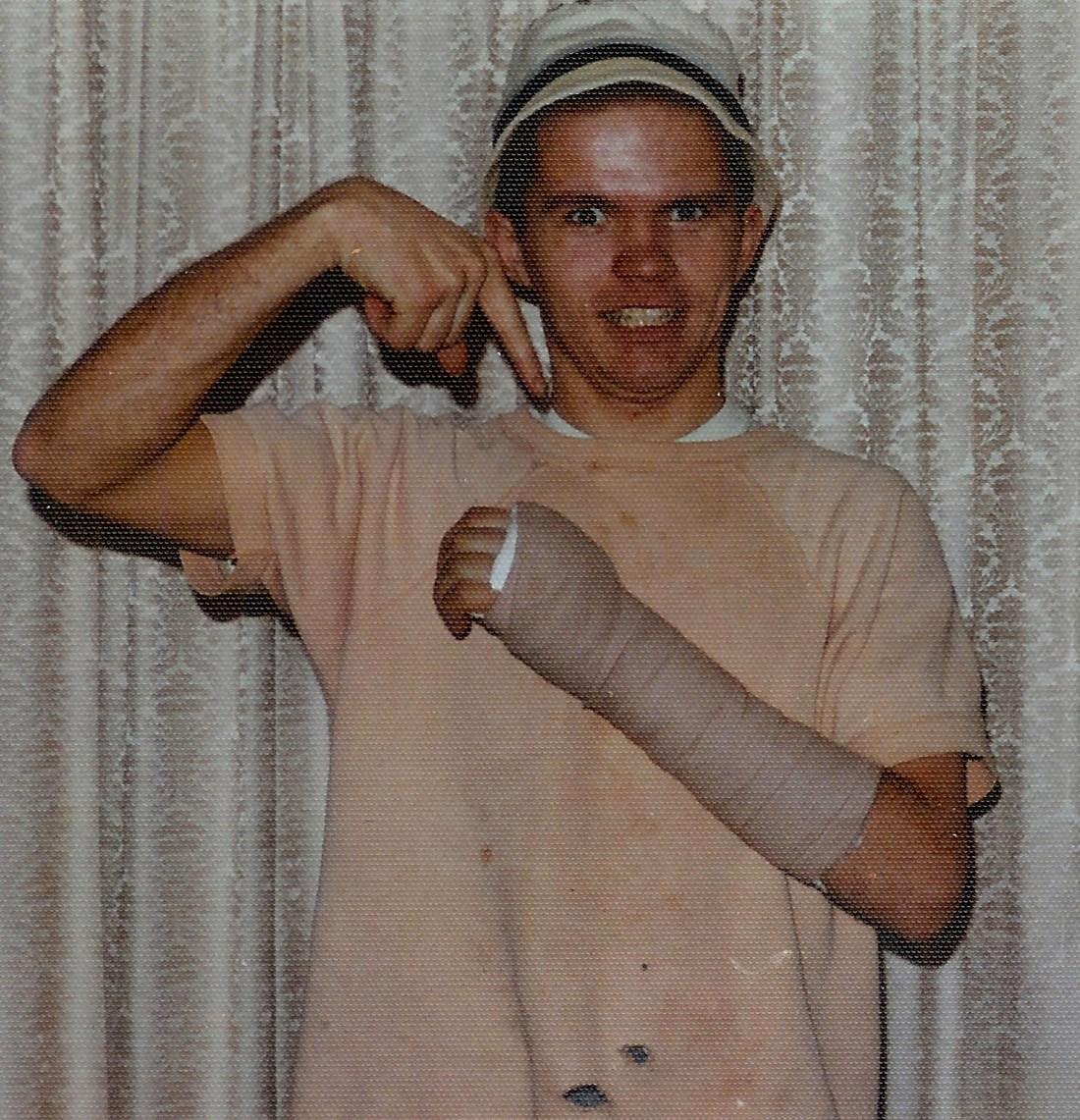 #526=Elliott's broken hand; Feb. 1974
